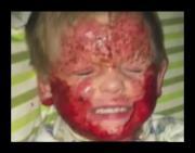 Dopo il vaccino reazione autoimmune con eczema sanguinante: la storia di Brensen