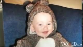 3 GEMELLI diventati autistici dopo vaccinazione lo stesso giorno: una coincidenza?