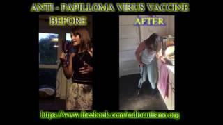 Paralisi da vaccino anti HPV: prima e dopo la vaccinazione